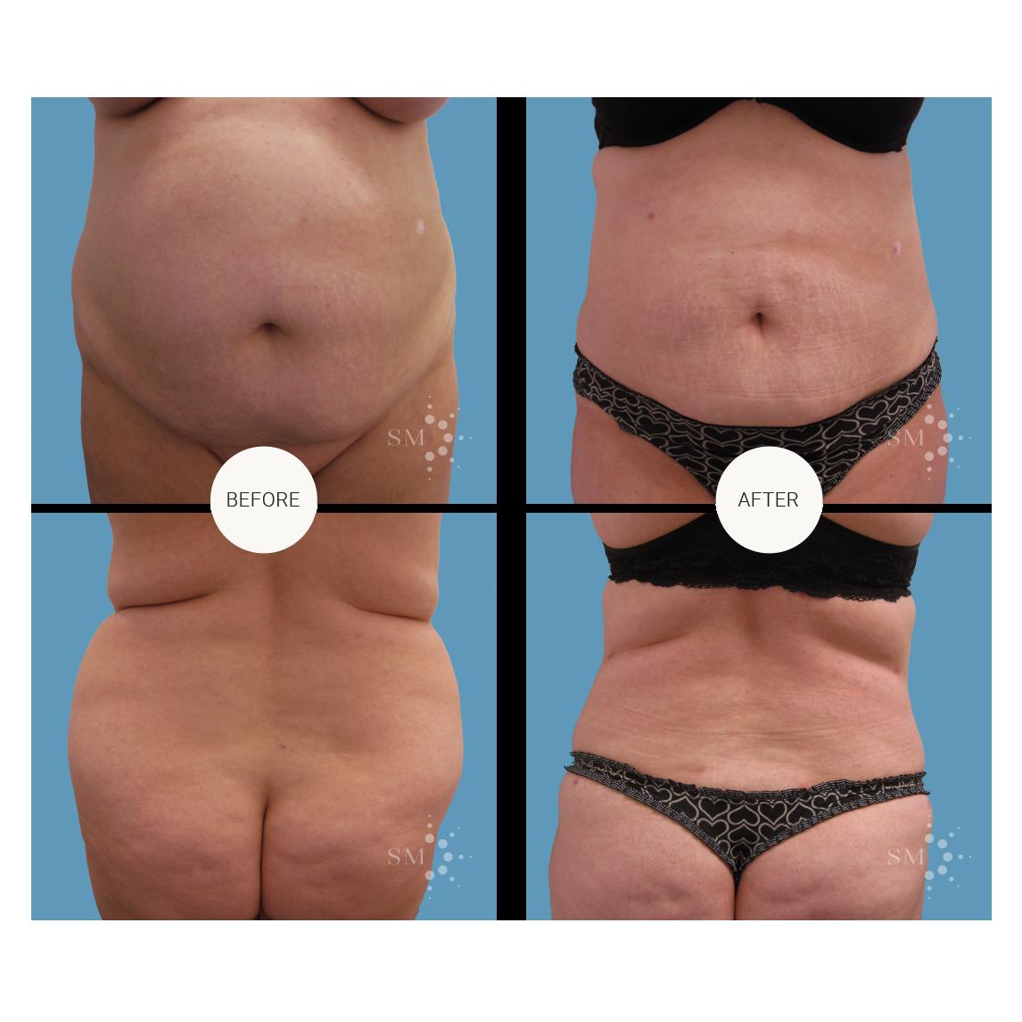 Liposuction - An Evolving Science but still an Imprecise