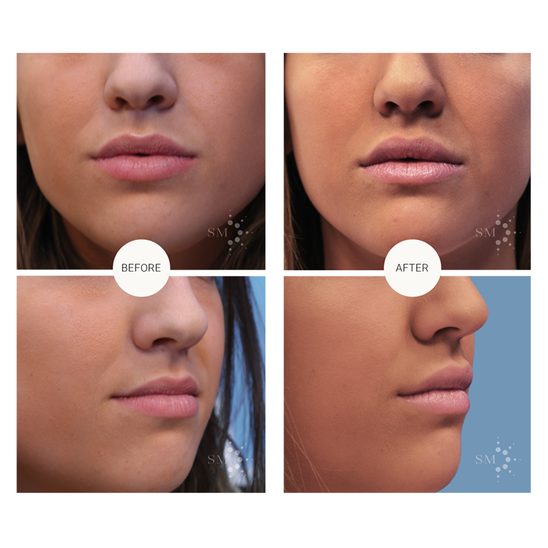 Lip injections in Montreal | Dr Sandra McGill
